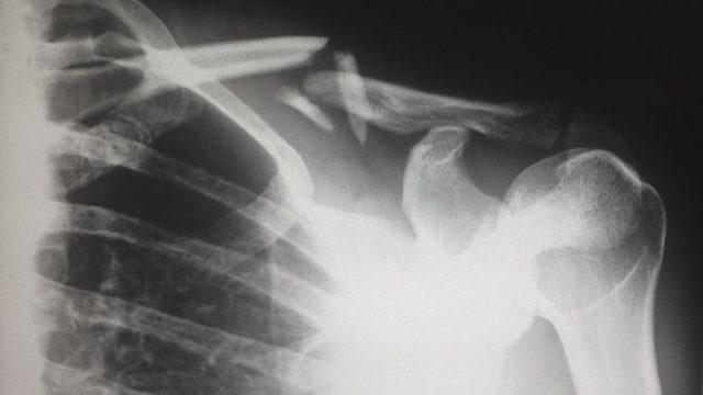 Xray of broken bone in the shoulder